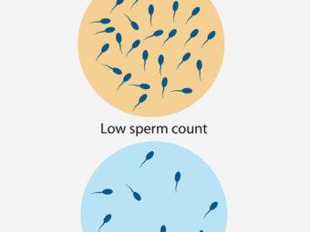 शुक्राणु की कमी (Low Sperm Count) : लक्षण, निदान और इलाज   Sperm Motility In Hindi