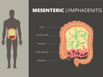 Mesenteric Lymphadenitis In Children: Causes And Treatment