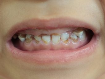 Baby Bottle Tooth Decay: Causes, Signs, And Prevention