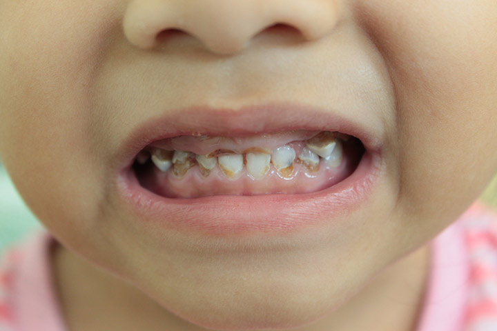 Baby Bottle Baby Bottle Tooth Decay Causes, Signs, And Prevention1Tooth Decay Causes, Signs, And Prevention
