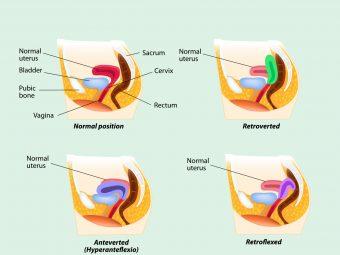 प्रेगनेंसी में एंटेवर्टेड यूटेरस: कारण, लक्षण व इलाज  Anteverted Uterus Meaning In Hindi