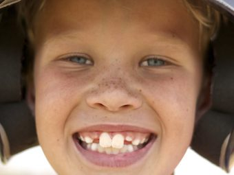 8 Causes Of Buck Teeth In Kids And Possible Health Risks