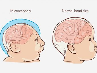 Microcephaly In Babies: Causes, Symptoms And Treatment