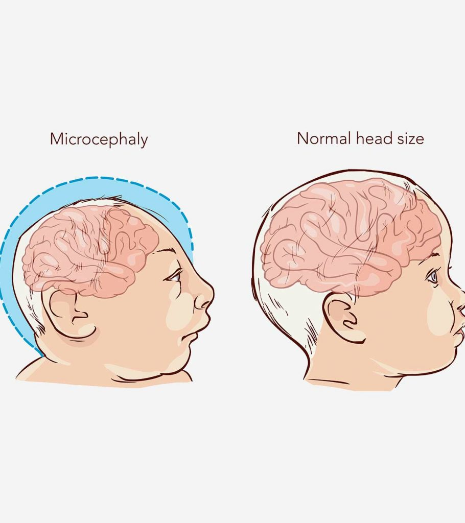 Microcephaly In Babies Causes Symptoms And Treatment Banner 910x1024
