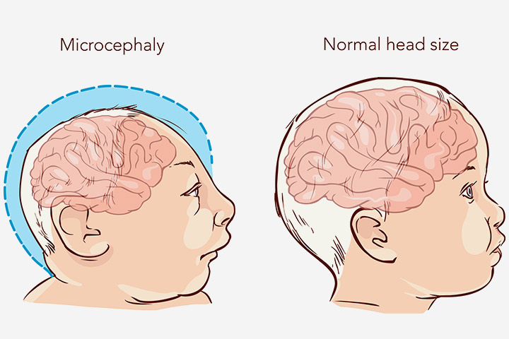 Microcephaly In Babies Causes Symptoms And Treatment Web
