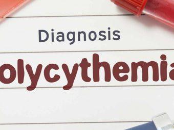 Neonatal Polycythemia: Causes, Symptoms And Treatment