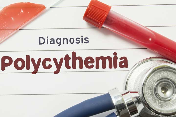 polycythemia in newborn babies symptoms treatment