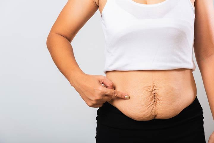 Diastasis Recti After Pregnancy In Hindi-1