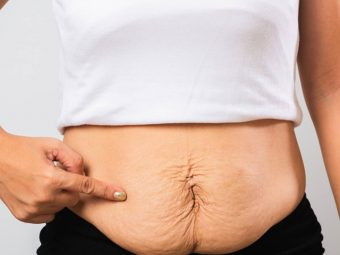 डिलीवरी के बाद डायस्टैसिस रेक्टी (पेट की दीवार अलग होना)   Diastasis Recti After Pregnancy In Hindi