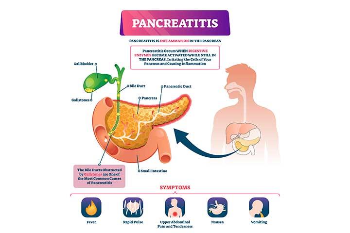 Pancreatitis In Children