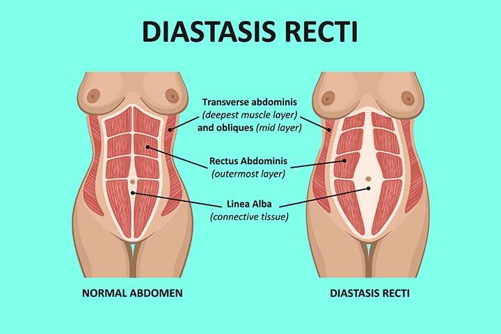 What is the problem of diastasis recti