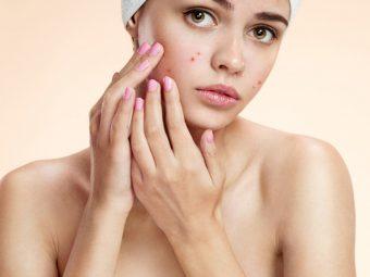 किशोरावस्था में कील-मुंहासे होने के कारण, इलाज व घरेलू नुस्खे   Yuvavastha Me Pimple Kyu Hote Hai