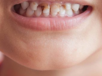 Gingivitis In Children: Types, Causes, Symptoms, And Treatment