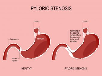 Pyloric Stenosis In Babies: Symptoms, Causes, And Treatment