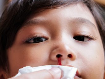What Causes Nosebleeds In Children And How To Stop Them?