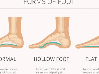 Flat Feet In Children: Causes, Signs, Diagnosed, And Home Care