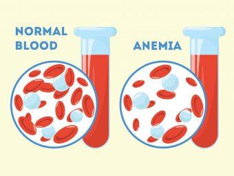 डिलीवरी के बाद एनीमिया (खून की कमी): कारण, लक्षण व इलाज | Anemia After Pregnancy In Hindi