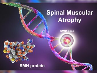 Spinal Muscular Atrophy (SMA) in Infants: Types, Causes And Management